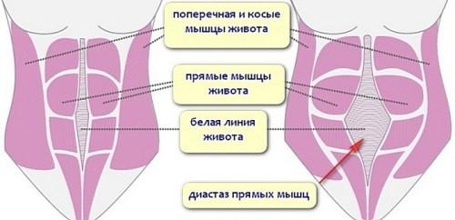 Постнатальная йога  как метод восстановления организма после беременности и родов