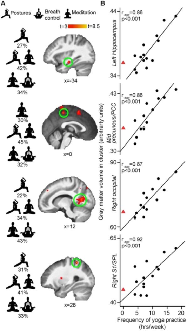 Влияние практики йоги на нейропластичность